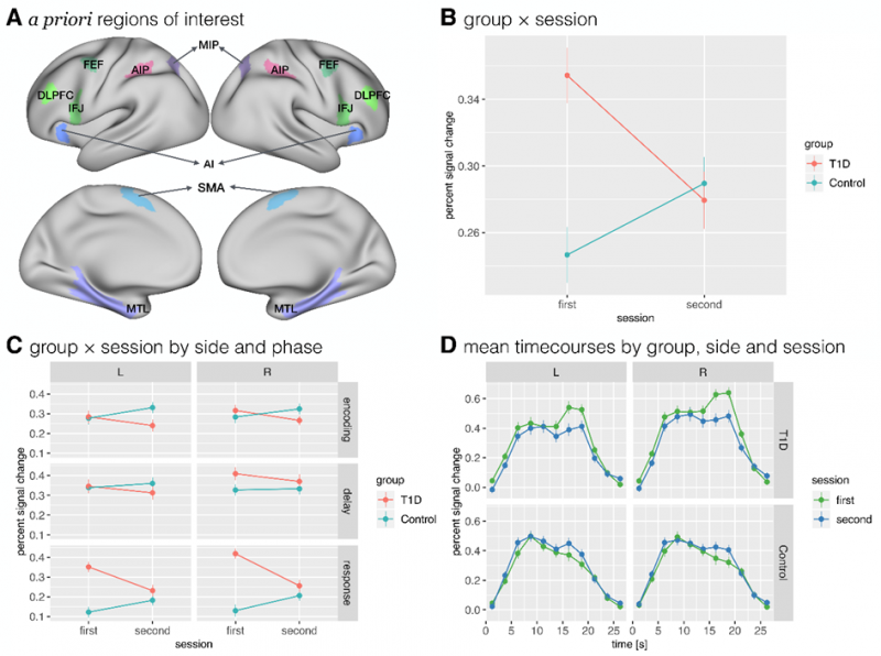 Differences in brain activation between the T1D group and the control group, estimated by functional MRI during performance of a spatial working memory task.  Explanation of figure: Panel A: A priori regions of interest. Panel B: Change of activation in regions of interest between the first and second sessions in the T1D group and the control group. Panel C: Change of activation in regions of interest between the first and second sessions in both groups with regard to memory phase and hemisphere. Panel D: Time course of activation in regions of interest for each group, session and hemisphere. FEF = frontal eye fields, SMA = supplementary motor area, AI = anterior insula, AIP = anterior intraparietal area, MIP = medial intraparietal area, IFJ = inferior frontal junction, DLPFC = dorsolateral prefrontal cortex, MTL = medial temporal lobe. Figure created by: Anka Slana Ozimič, Grega Repovš, Andrej Vovk and Jasna Šuput Omladič