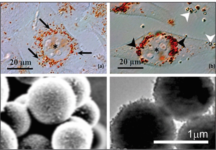 Above: MG-63 cells with the differential interferential contrast following one hour of incubation with TiO2 microspheres (a) and with gadolinium-enriched microspheres (b) Below: TiO2 microspheres; not enriched (left) and gadolinium-enriched (right)   Source: R. Imani, R. Dillert, D.W. Bahnemann, M. Pazoki, T. Apih, V. Kononenko, N. Repar, V. Kralj-Iglič, G. Boschloo, D. Drobne, T. Edvinsson, A. Iglič